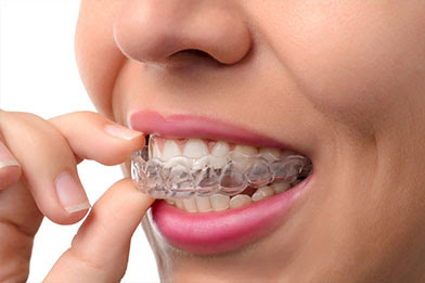 Invisalign Dentist Fairway KS