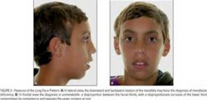 Facial Growth and Appearance - Oral Facial Myology Therapy