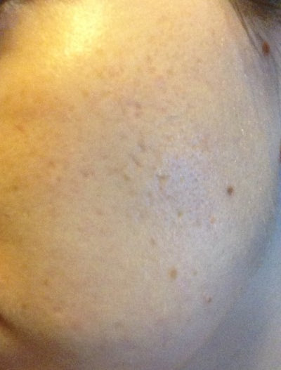 What Laser Treatment is Best to Get Rid of Acne Scars ...