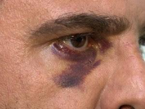 Motociclista disse que levou um soco no olho direito (Foto: Reprodução/ TV Gazeta)