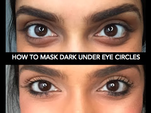 Cover Dark Circles - You Won't Believe What She Uses ...