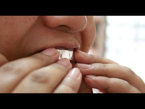 بالفيديو: هذا ما يحدث عند تغطية الأسنان بورق الألمنيوم لمدة ساعة
