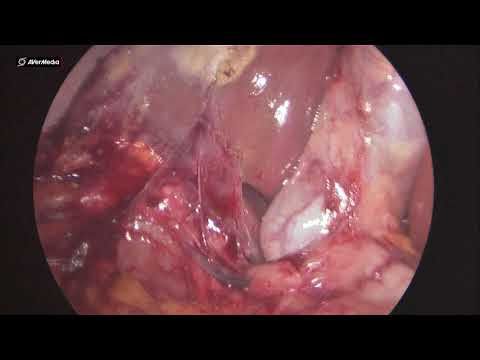 07012019 Laparoscopic Cholecystectomy in Sufferers With Earlier Stomach Surgical procedure  1135