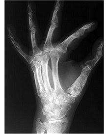 Radiografia Mão Esquerda