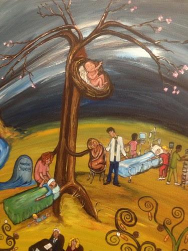 Kidney Cancer Tree