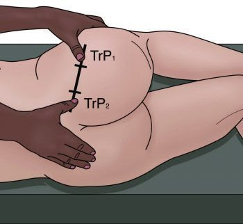 Location of PM Trigger Points - El Paso Chiropractor
