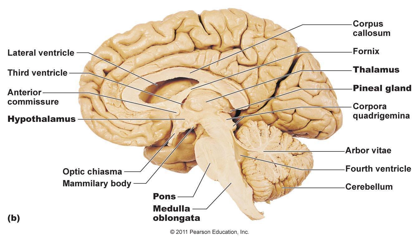 brain1321457028093