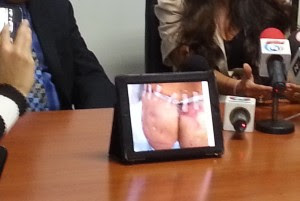 En la imagen se aprecia una de las cirugías a las cuales se tuvo que someter la exmodelo tras el tratamiento del Doctor Vargas Scott. CRH