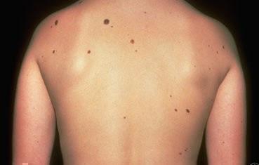 Atypical moles