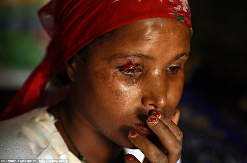 Rock bottom: A young prostitute named China sits stunned after being beat up by a man visiting Kabele Five in Bahir Dar, Ethiopia