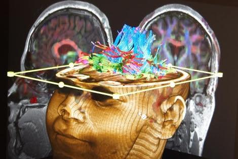 El ictus consiste en una alteración del riego cerebrovascular.   Jon Corostola