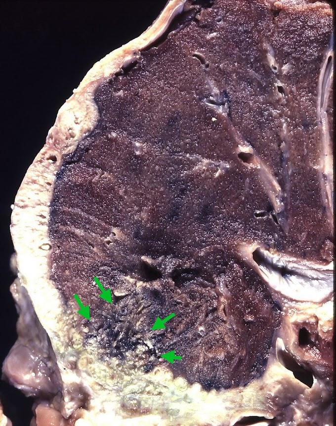 Mesothelioma Gross