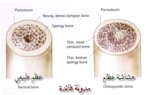 هشاشة العظام Osteoporosis