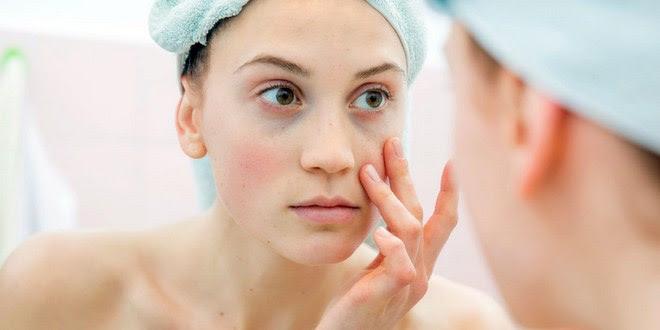 Image result for cara menghilangkan kantung mata