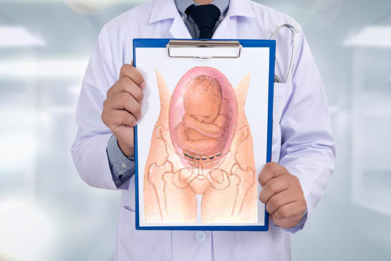 Ectopic Pregnancy Symptoms Iud - Pregnancy Symptoms