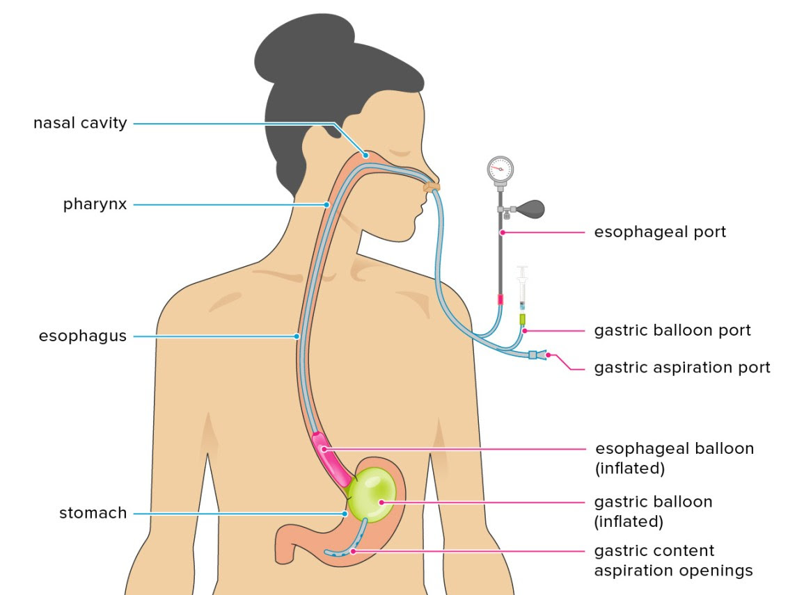 Sengstaken-Blakemore Tube: purpose, procedure and complications