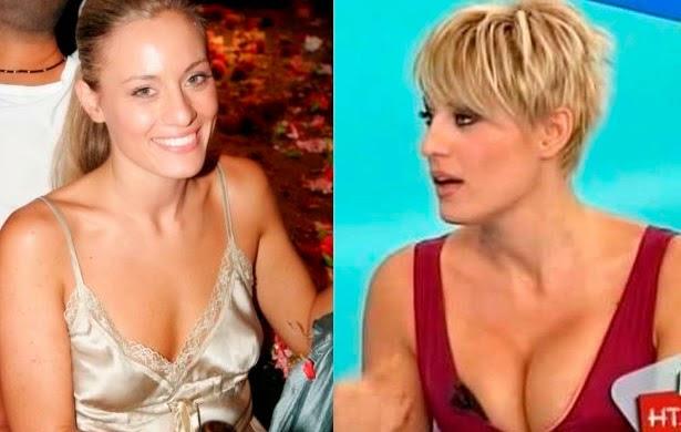 """Οι πλαστικές επεμβάσεις Ελληνιδων celebrities που """"βγαζουν μάτι""""! (ΦΩΤΟ)"""