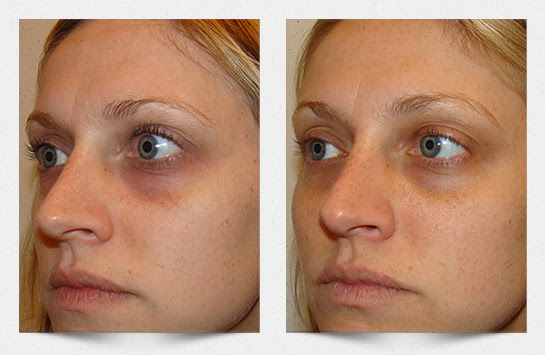 Carboxy Therapy Now Available - Gentle Touch Laser Center ...