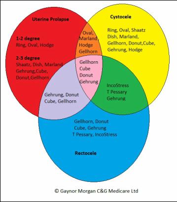 Diagram Of Rectocele