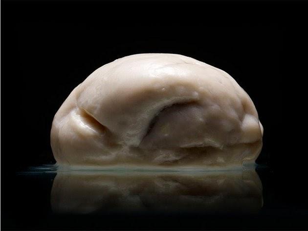El cerebro más raro que has visto nunca