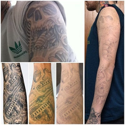 Laser Tattoo Removal Sleeve Cost | tattoo removal brisbane