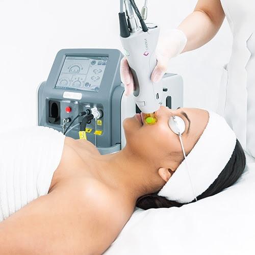Laser Hair Removal - New Look Skin Center in Glendale ...