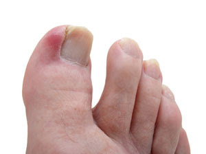 An ingrown toenail