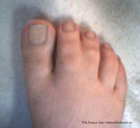 Webbed Toe