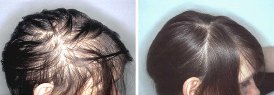 Welche Frisur Bei Haarausfall Frau - yskgjt.com
