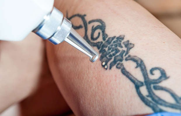 This Is What It's Really Like To Get A Tattoo Removed