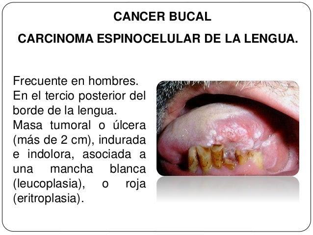 cancer bucal mas frecuente)