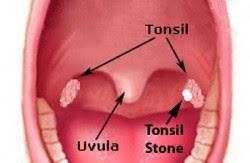 Tonsil-Stones