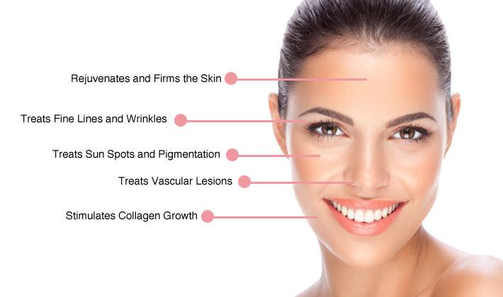 Laser 360  Skin rejuvenation treatment