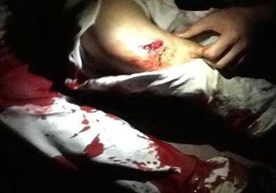 Injuries-cartridges22