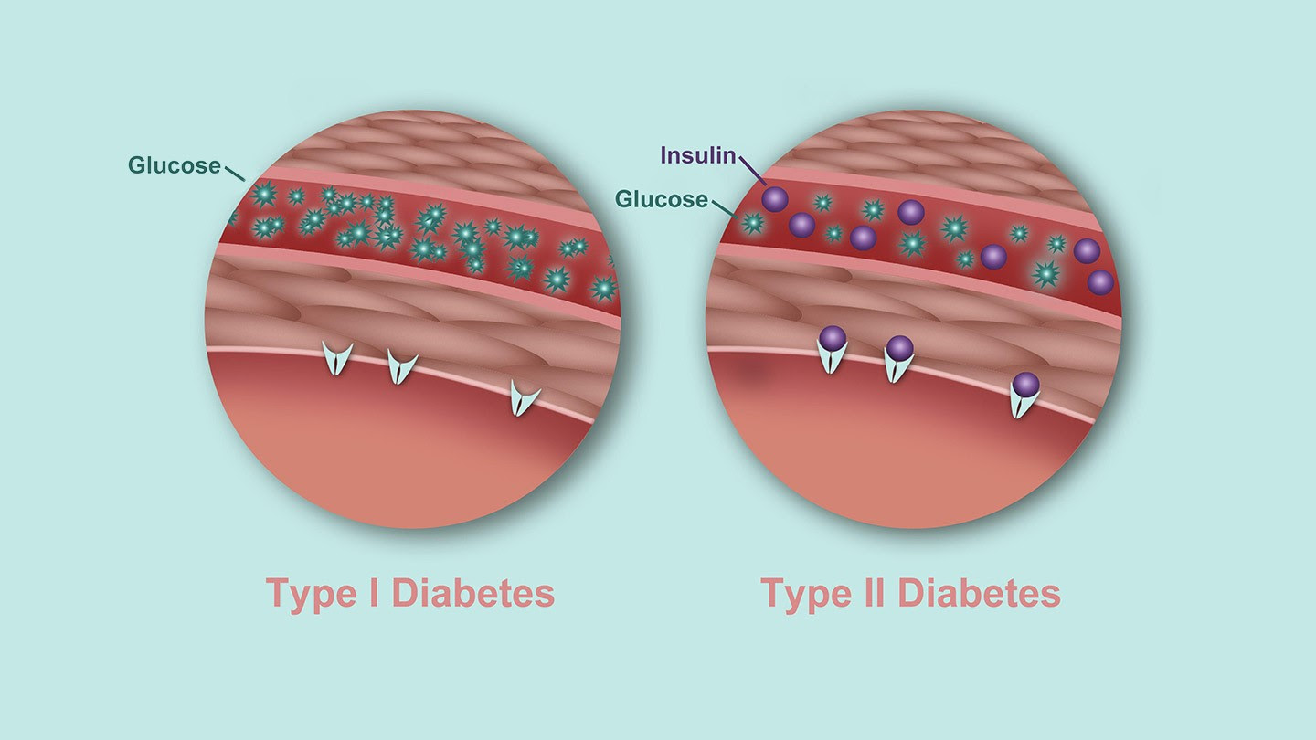 Whats the Difference Between Type 1 and Type 2 Diabetes RM 1440x810