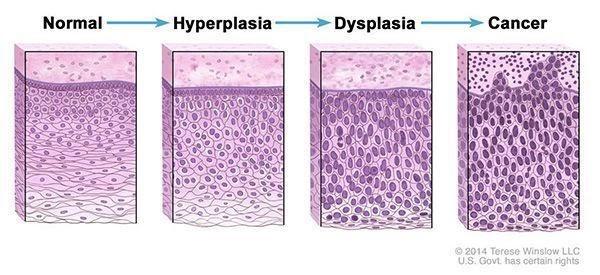 Nem toda alteração celular e/ou de tecidos é câncer