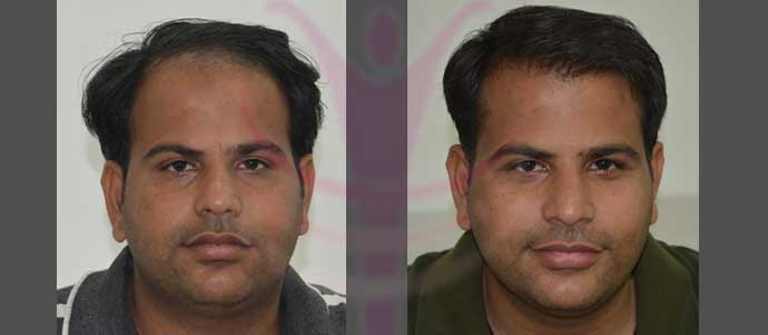 http://www.medispaindia.in/wp-content/uploads/2015/06/Anil-Sharma-Before-After-Hair-Transplant-At-Medispa2.jpg
