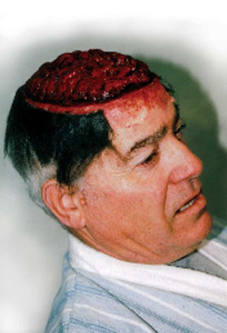 Minum darah babi, otaknya penuh cacing ..