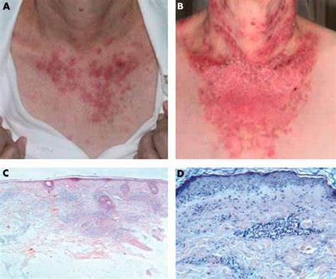 Discoid pictures rash — discoid lupus occurs in people ...