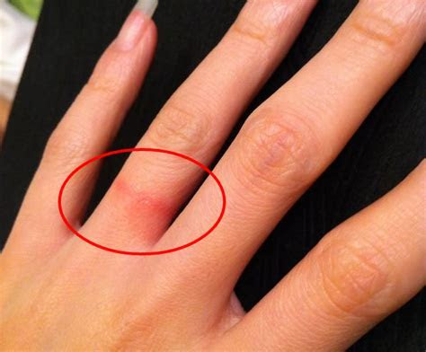 Are Tungsten Carbide Rings Hypoallergenic?   Timeless