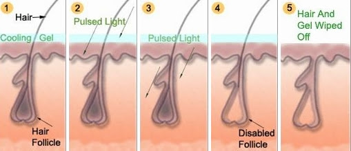 Laser Hair Removal Treatment Cost In India