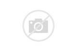Images of Louisville Player Injury