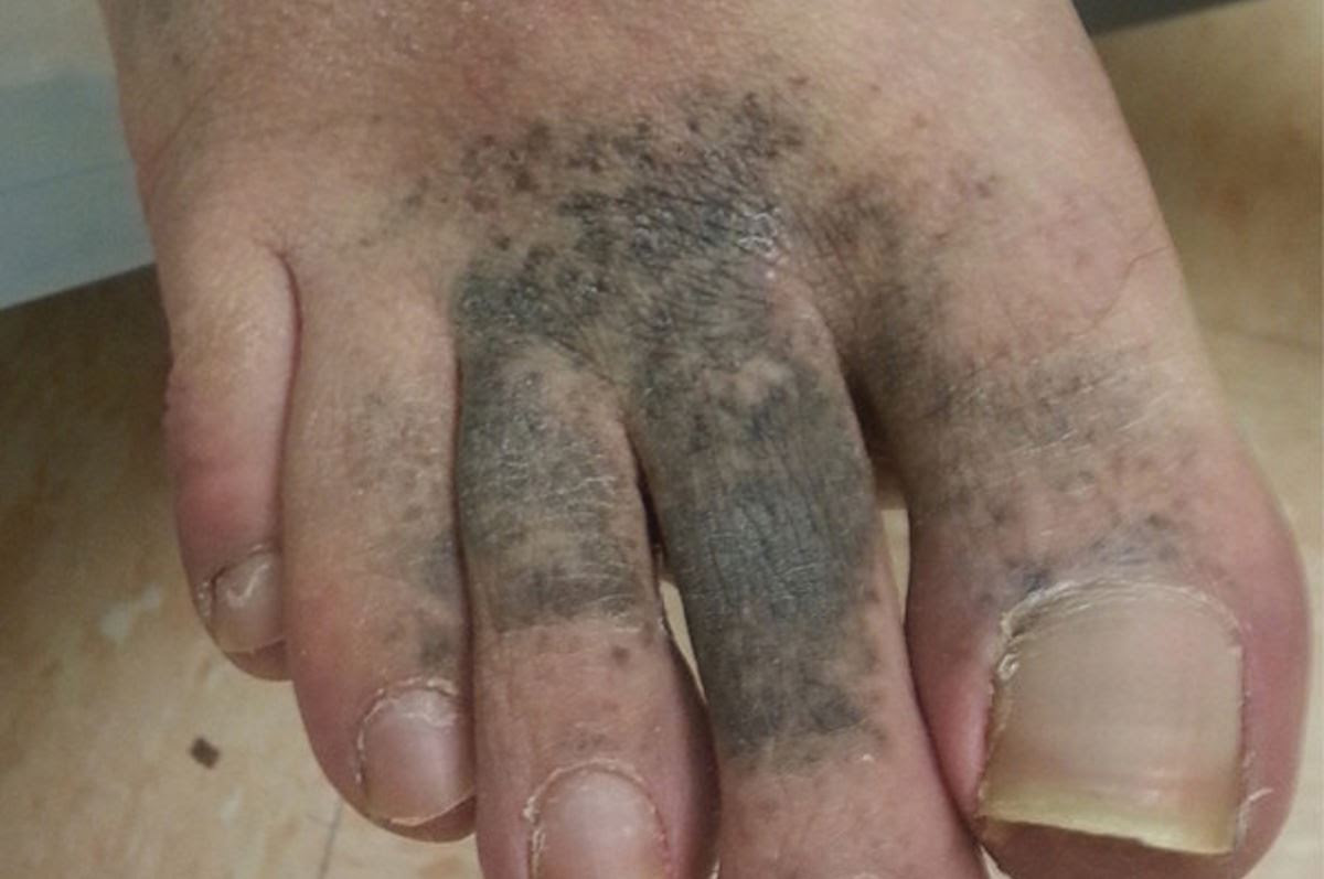 Diabetic foot discoloration pictures | Symptoms and pictures