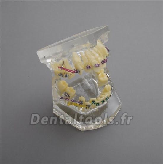 M-3005 Modèle anatomique dentaire dentaire II traitement des chevauchements dentaires