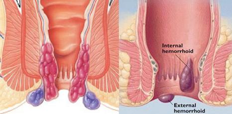 Basur (Hemoroid) Hastalığı Nedir? Tedavisi