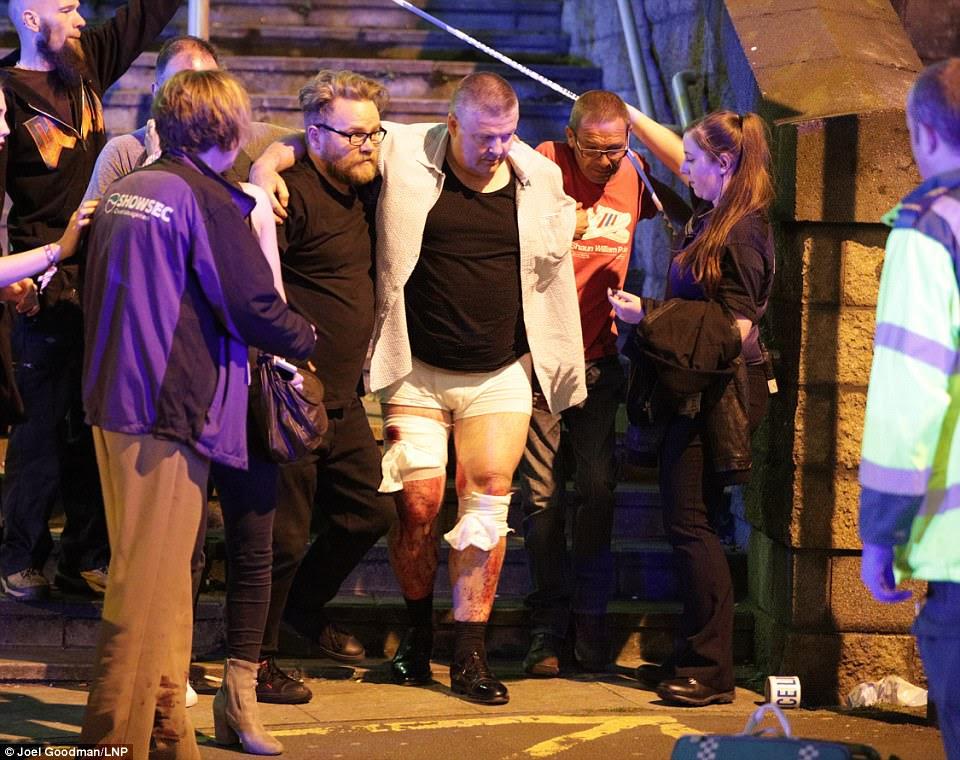 """Os frequentadores de shows ajudaram pessoas feridas a se afastarem do show na noite passada.  Testemunhas descrevem a cena como """"como uma zona de guerra"""""""