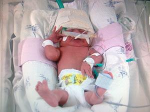 Primeiro bebê nascido no DF em 2012 (Foto: Rede Globo / Reprodução)