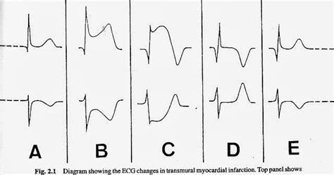 gambaran ekg pasien  angina pectoris dunia keperawatan