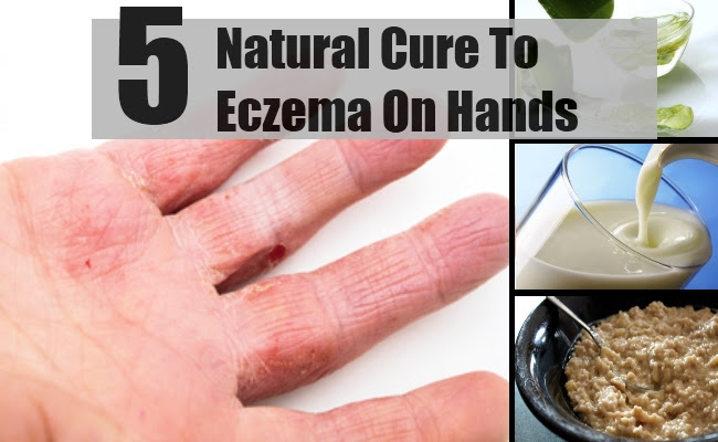 5 Natural Cure For Eczema On Hands - How To Cure Eczema On ...