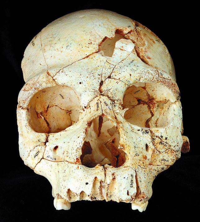 Las heridas en el lado izquierdo del hueso frontal fueron provocadas por un individuo diestro. Javier Trueba
